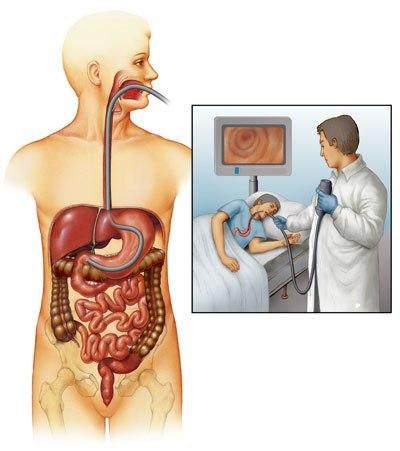 UGI endoscopy for heartburn or GERD